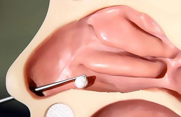 Оказание неотложной медицинской помощи при инородных телах 2