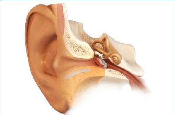 Тимпанопластика - операция на среднем ухе