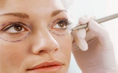 Грыжи под глазами: причины возникновения и варианты эффективного лечения