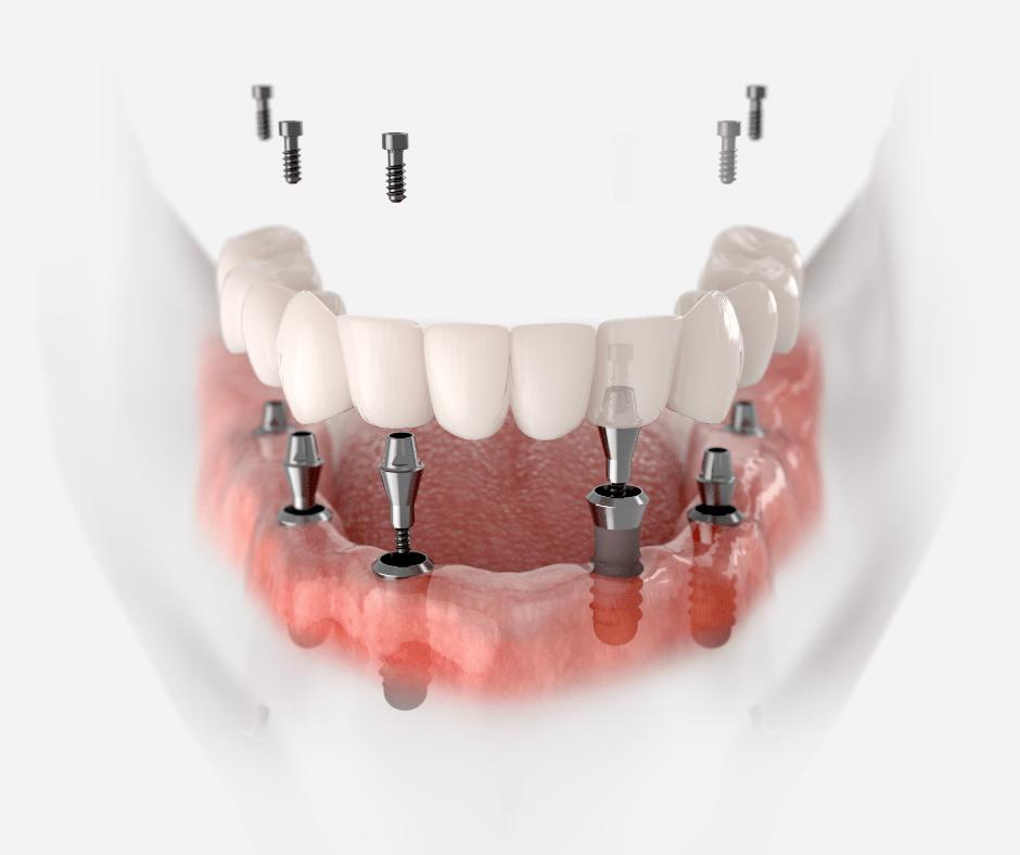 Травматические повреждения костей лицевого черепа