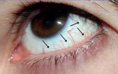Захворювання рогівки ока