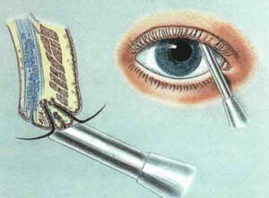 Трихиаз: причины и лечение