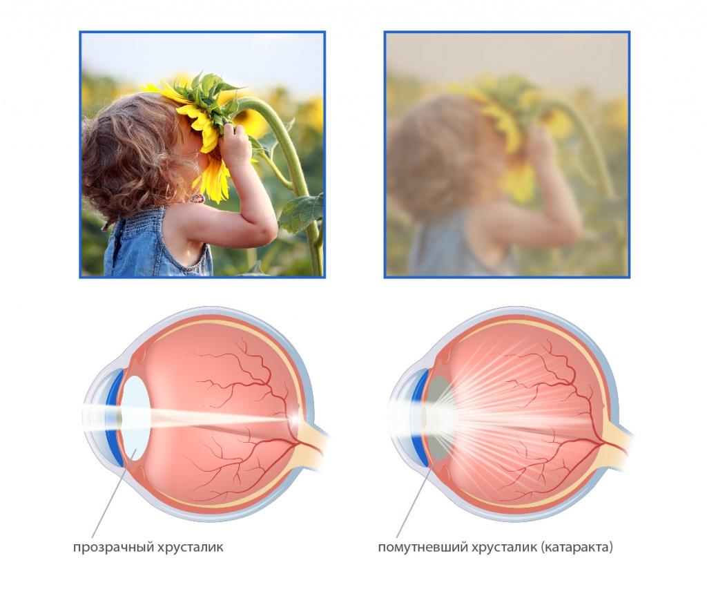 Хирургия катаракти